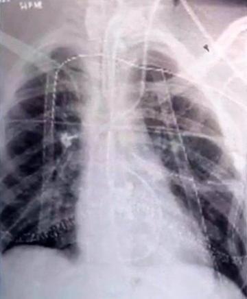 抽了一年电子烟的肺部(抽了一年relx电子烟的肺部)